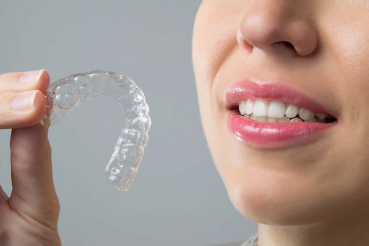 Woman with nice teeth holds invisible braces