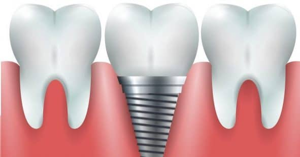 A general image of an implant