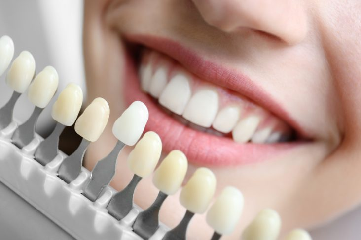 Cosmetic Dental Treatment Explained