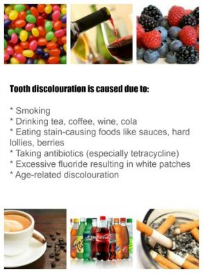 teeth discolouration