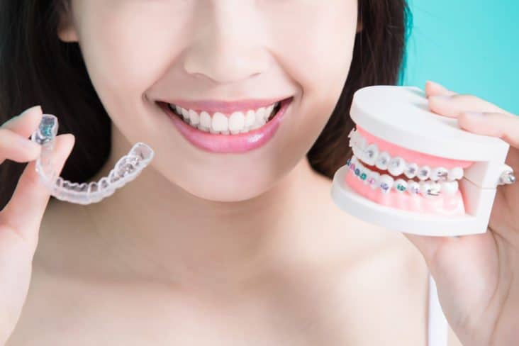 A woman holds up clear aligners and braces